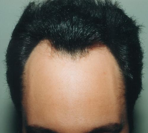 Hair Transplant West Island
