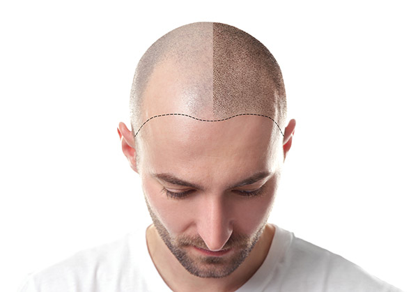 hair restoration nyc man